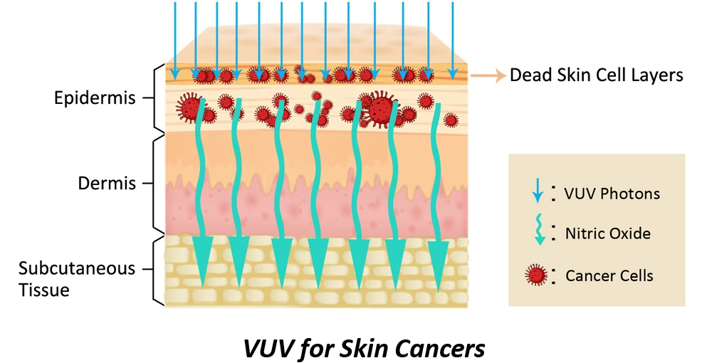 VUV Light Therapy for Skin Cancer - MiraMate