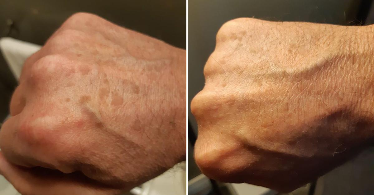 Using Miramate Flash To Resolve Flat Warts On My Hands Miramate